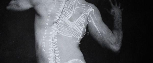back bones