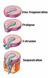 4 Herniated Disc Stages